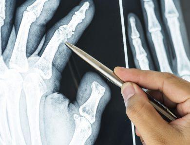 Ortopedico Catania: il migliore nel settore